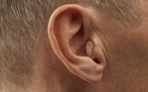 Completely-In-The-Canal Hearing Aids